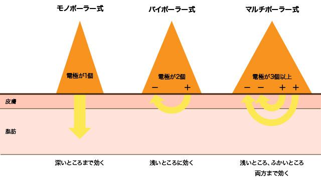 ラジオ波の種類